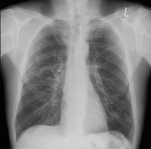 Figure 1. Chest X-ray appears normal.