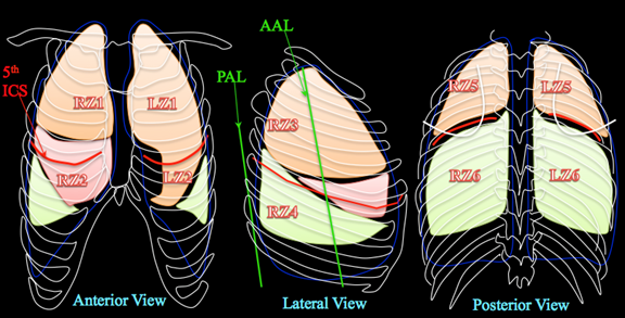 Figure S2. Graphical representation of the four zones imaged with the borders for each zone demarcated. Legend: 5th ICS (5th Intercostal space), AAL (Anterior axillary line), PAL (Posterior axillary line).