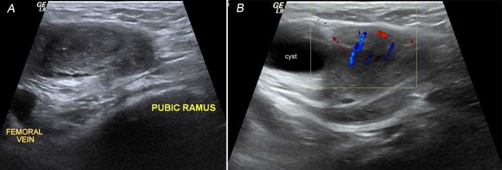 Figure 1. Transverse view of the ultrasound scan of the groin swelling revealed ovary lying anterior & medial to the femoral vein.
